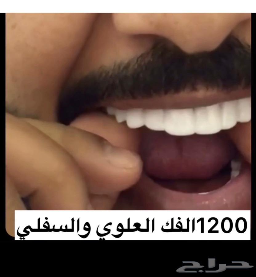 الرياض - ابتسامة الفينير