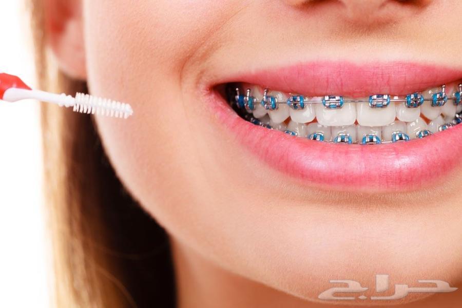 تقويم اسنان لون عنابي Images Collection