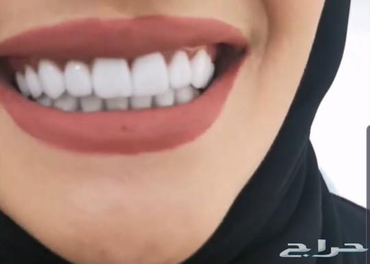 ابتسامه هوليود