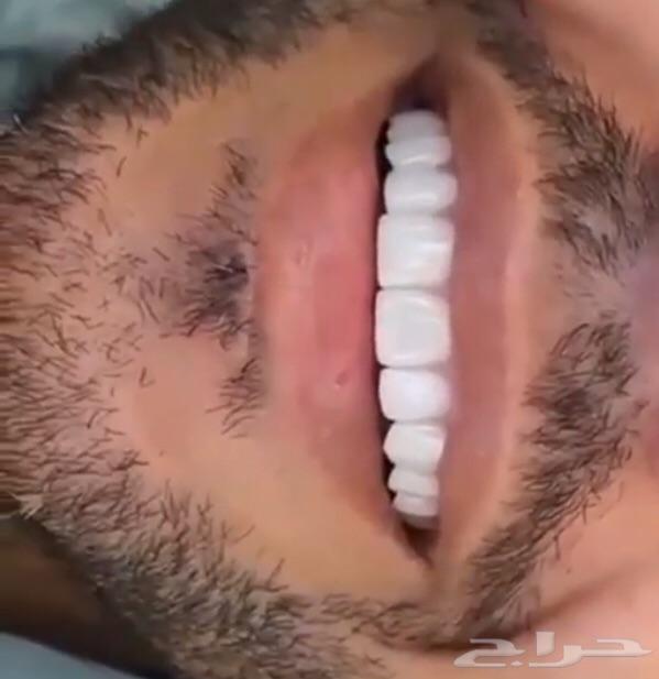 ابتسامة هوليود الثابتة