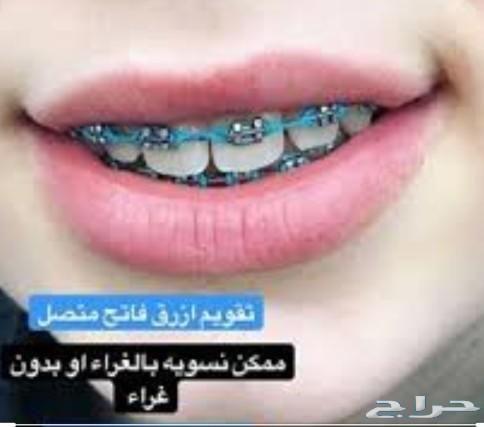 تقويم اسنان زينة جيزان